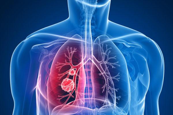 Gas Radón – Riesgos para la Salud